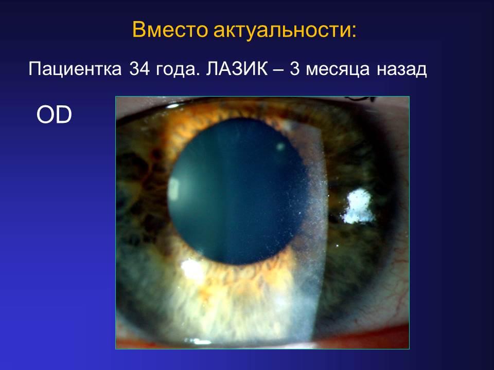 Значение синдрома «сухого глаза» при планировании эксимерлазерной коррекции