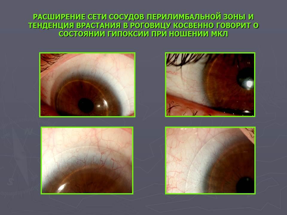 Влияние различных типов контактных линз на состояние глазной поверхности