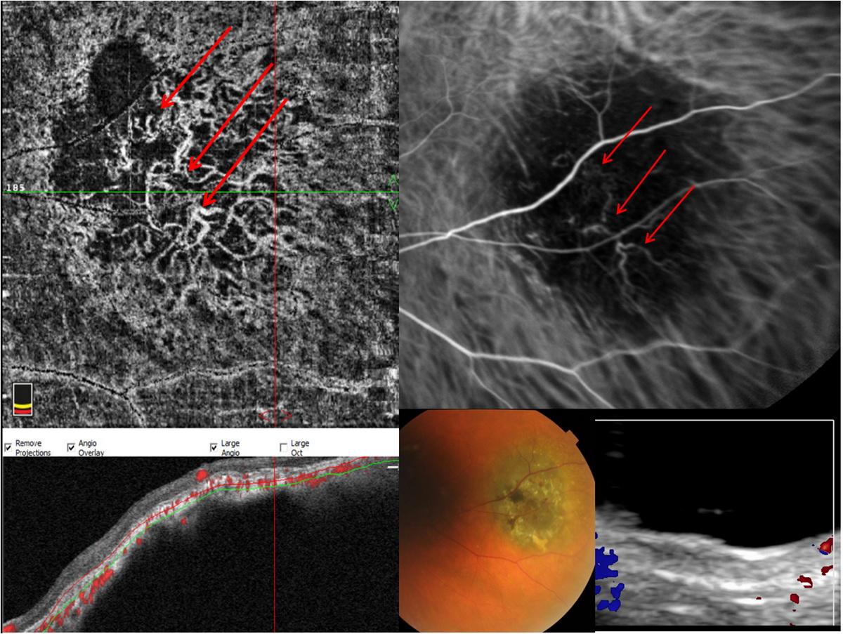 Диагностические технологии в оценке кровоснабжения меланомы хориоидеи