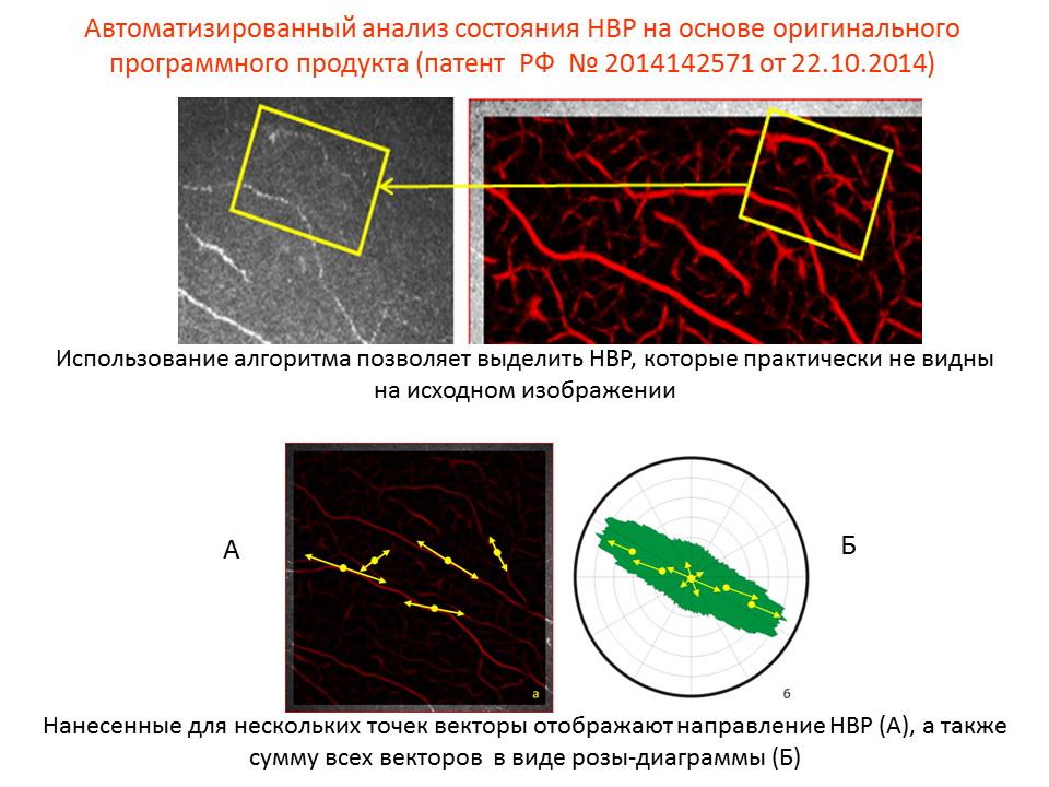 Состояние нервных волокон роговицы после эксимерлазерных рефракционных операций
