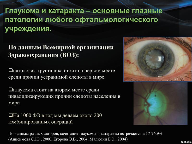 Комбинированная хирургия глаукомы и катаракты с фемтолазерным сопровождением