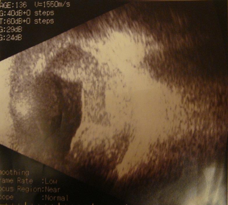 Сосудистые аномалии сетчатки, вызвавшие развитие вторичной глаукомы (Клинические наблюдения)