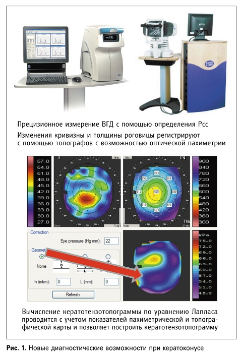 Персонализированный (локальный) УФ-кросслинкинг в лечении кератоконуса и эктазий роговицы