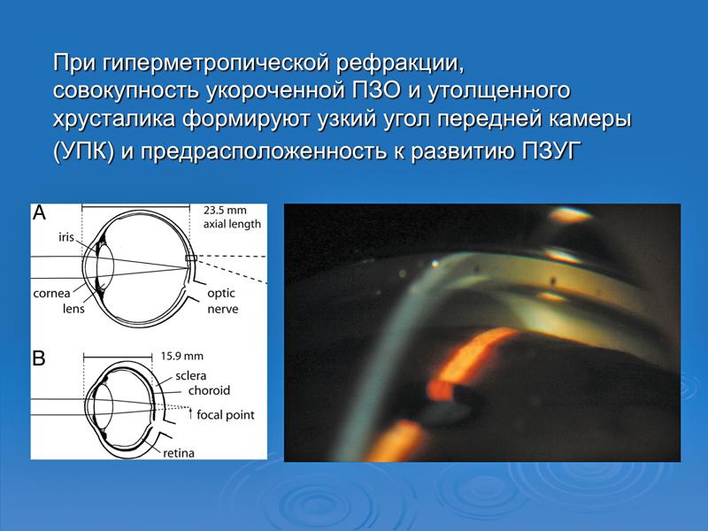 Гиперметропия: некоторые факторы перехода предрасположенности к развитию закрытоугольной глаукомы в реальную форму заболевания