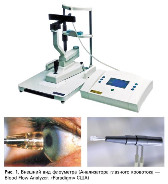 Особенности объемного глазного кровотока «коротких глаз» в норме и при глаукоме