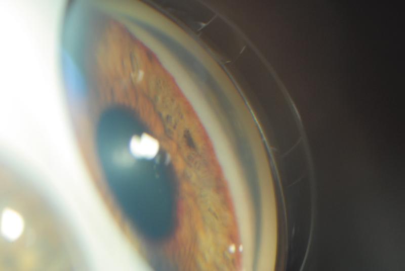 ретинопатия 3 стадия