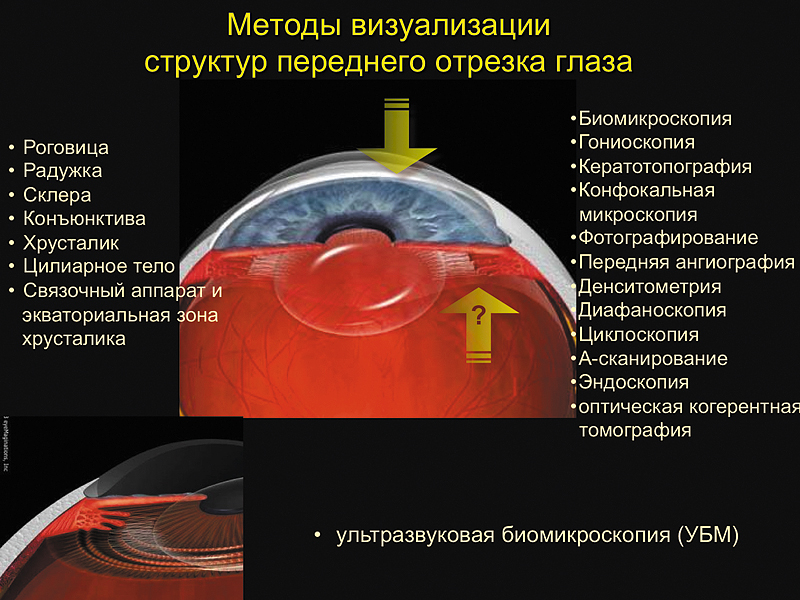 Возможности ультразвуковой биомикроскопии при эндотелиальном иридокорнеальном синдроме