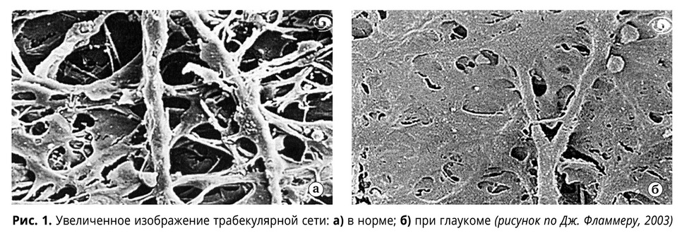 Об этиопатогенезе первичной открытоугольной глаукомы: склеропатия как триггер офтальмогипертензии