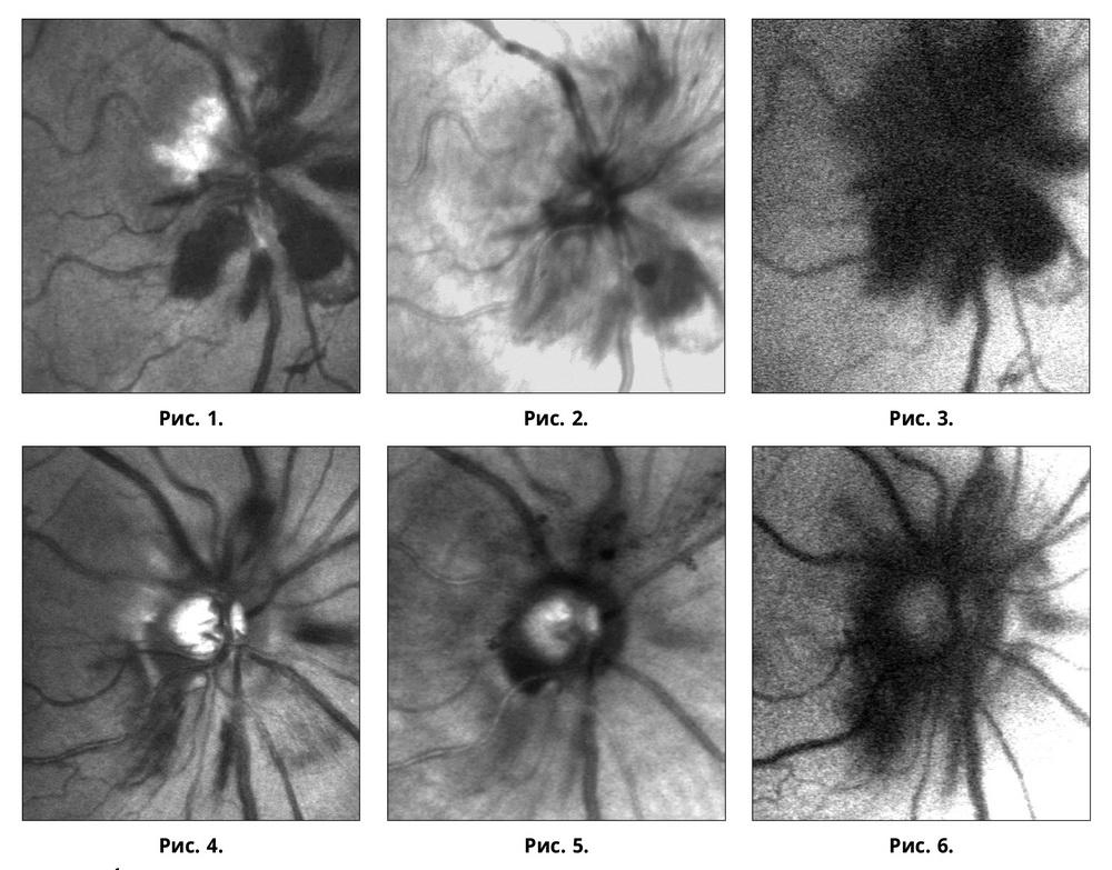 Случай тяжелой контузии глаза: современные аспекты диагностики и лечения