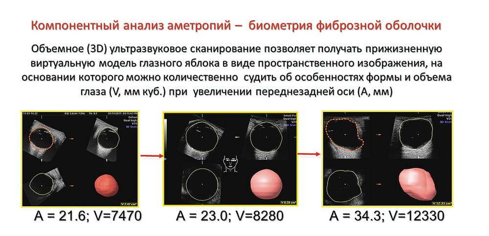 Биометрия в диагностике и мониторинге рефракционных нарушений