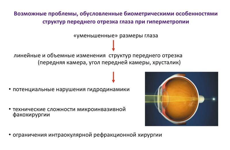 Биометрические особенности структур переднего отрезка глаза при гиперметропии