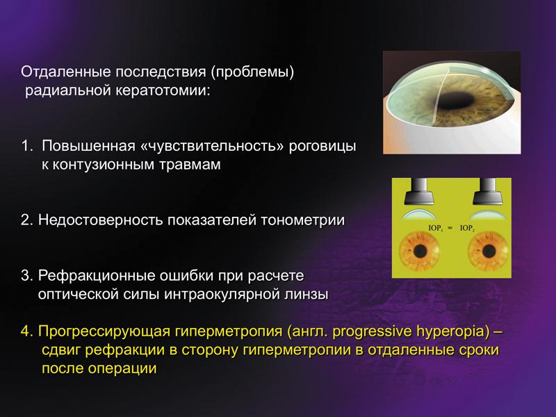 Механизм прогрессирующей гиперметропии после радиальной кератотомии*