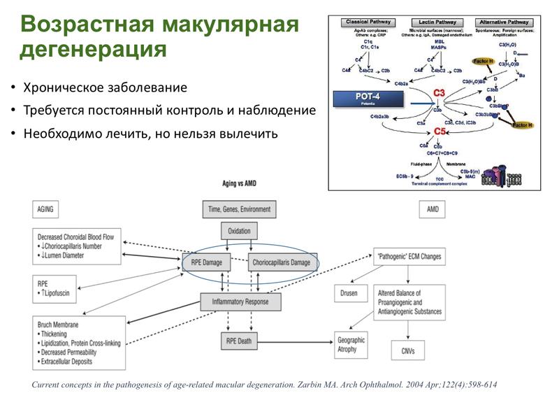Новые направления патогенетической терапии ВМД