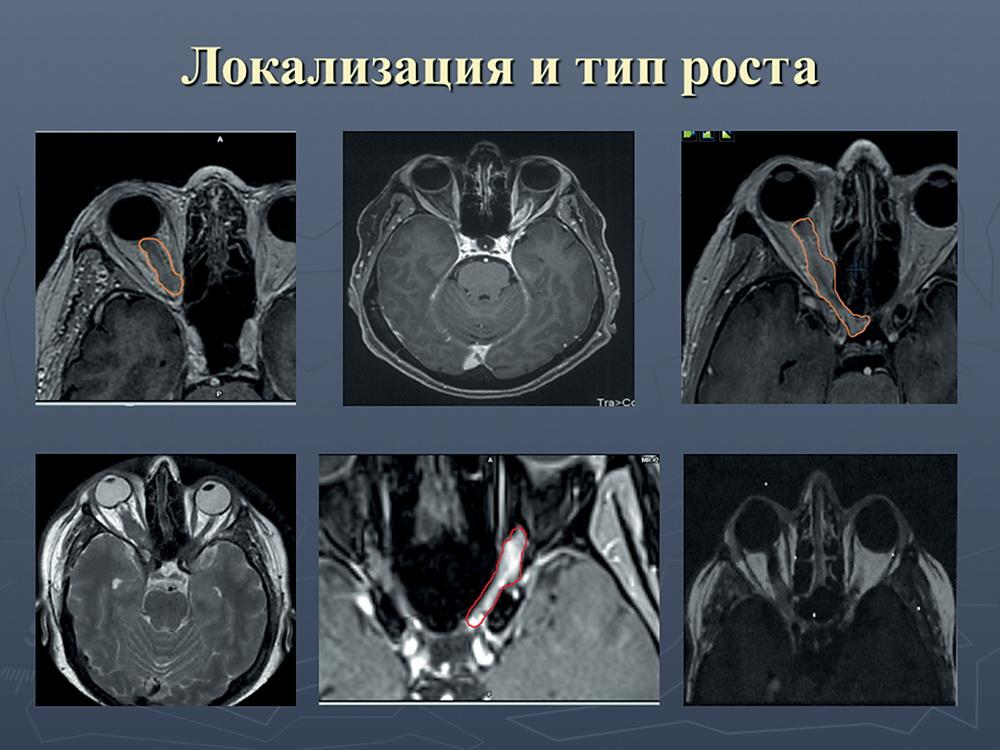 Офтальмологическая симптоматика, диагностика и дифференциальная диагностика при менингиомах оболочек зрительного нерва
