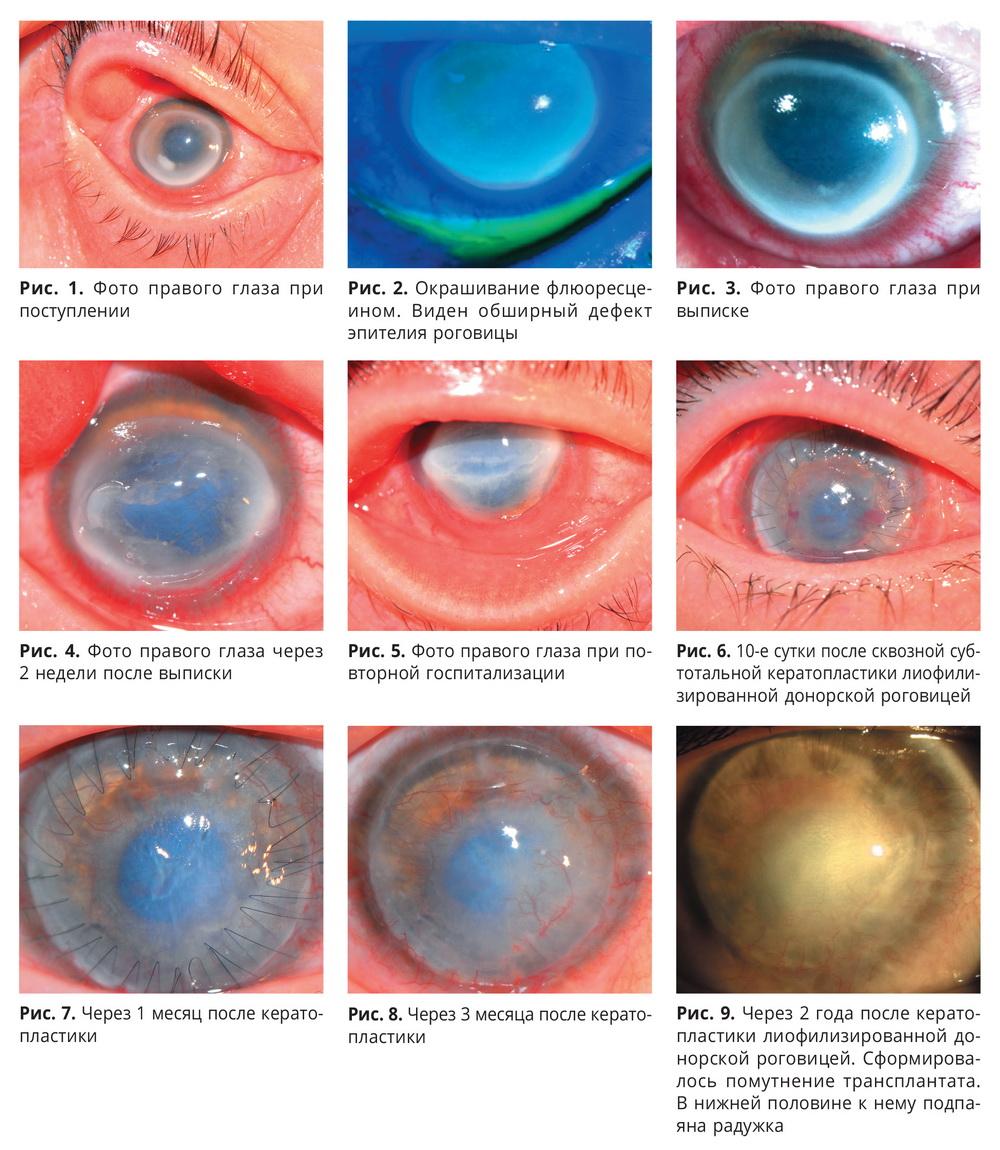 Клинический случай микробного кератита тяжелого течения, связанного с ношением силикон-гидрогелевых контактных линз