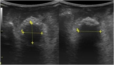 Применение пористого орбитального импланта «OCULFIT» для формирования опорно-двигательной культи после энуклеации у больных с увеальной меланомой
