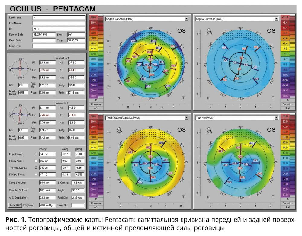 Современные диагностические приборы, позволяющие повысить точность расчета оптической силы интраокулярных линз у пациентов с катарактой после радиальной кератотомии
