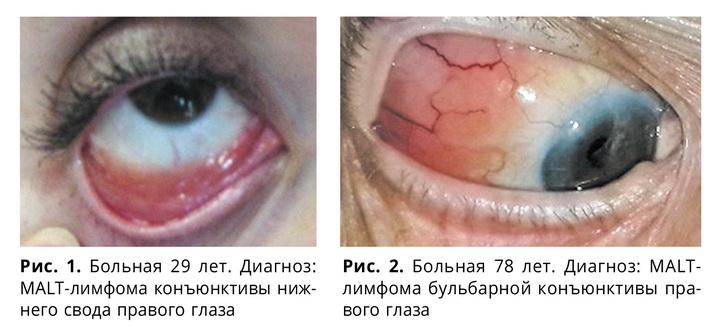 Особенности клинической картины неходжкинских лимфом придаточного аппарата глаза