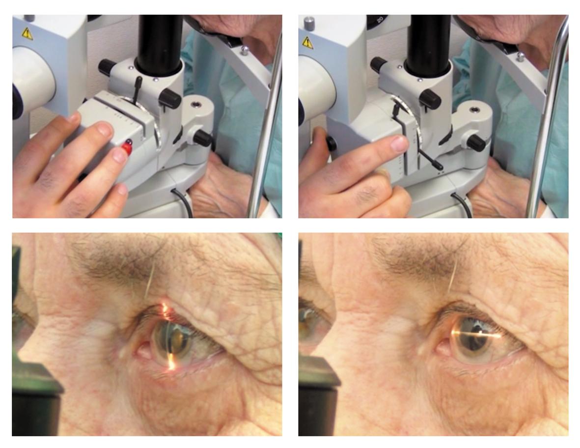Технология имплантации торических ИОЛ AcrysofToric у больных с катарактой и роговичным астигматизмом