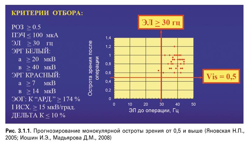 Интраокулярная коррекция при пресбиопии