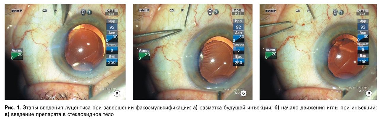 Одновременная факоэмульсификация и анти-VEGF терапия у пациентов с катарактой и неоваскулярной ВМД