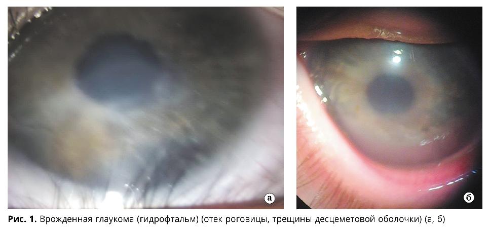 Врожденная глаукома: значение современных методов исследования для диагностики и прогнозирования