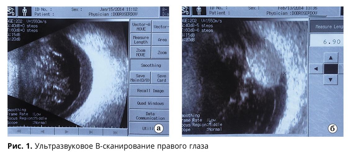 Необычный характер хориоидального метастаза (клинический случай)