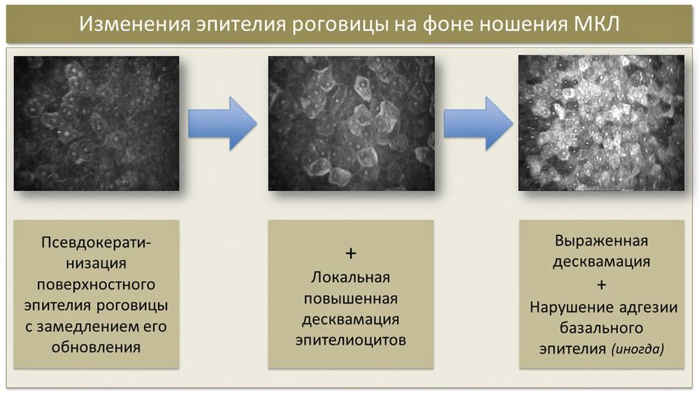 Синдром «сухого глаза» у пациентов с рефракционными нарушениями