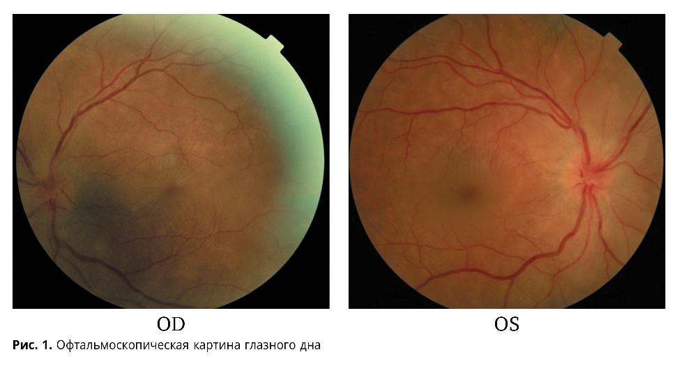 Клиническое наблюдение пациентки с синдромом Фогта-Коянаги-Харада
