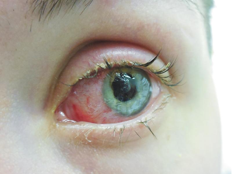 Клинический случай: первичная хирургическая обработка проникающего ранения глазного яблока с экстракцией катаракты и имплантацией ИОЛ