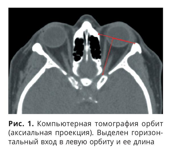 Анатомия орбиты в свете КТ