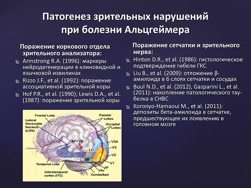 Морфофункциональные параметры сетчатки и зрительного нерва у пациентов  с болезнью Альцгеймера