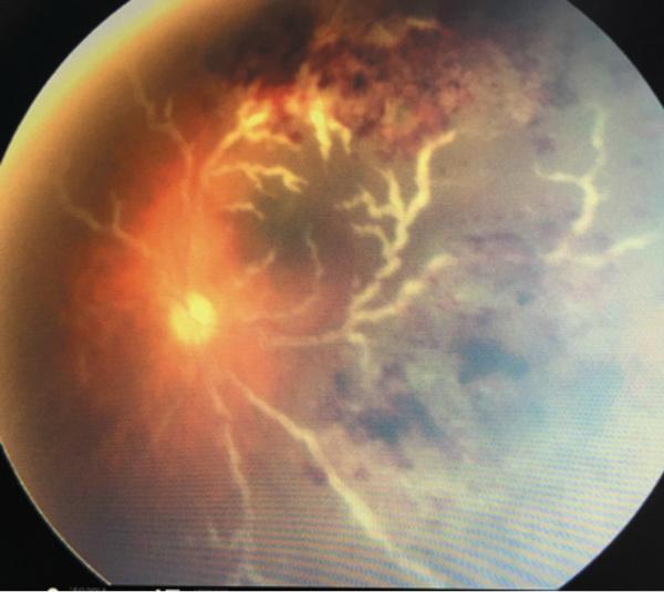 Протокол диагностики и лечения цитомегаловирусного ретинита у детей после трансплантации гемопоэтических стволовых клеток