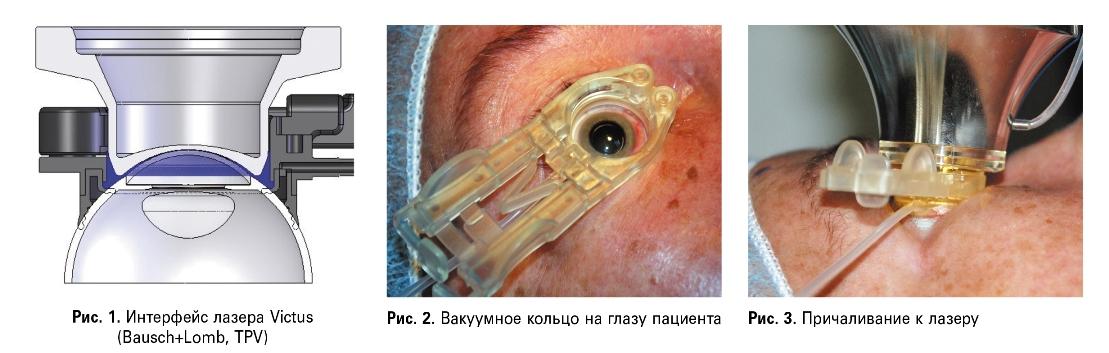 Клинические результаты факоэмульсификации катаракты с фемтолазерным сопровождением  и имплантацией гидрофобной «Glistening-free» ИОЛ