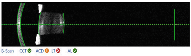 Рис. 1. Визуализация роговицы, радужки и хрусталика (а) и макулярной области сетчатки (б) методом Swept Source OCT на приборе ИОЛ-Мастер 700