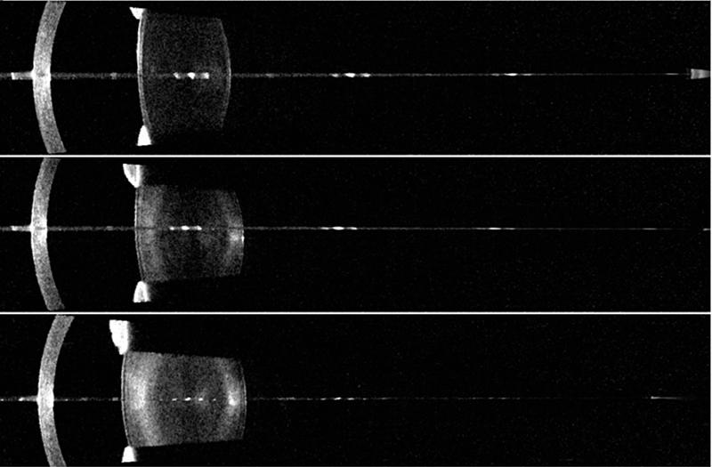 Рис. 2. Возрастные изменения хрусталика (сверху вниз) в молодом, зрелом и пожилом возрасте