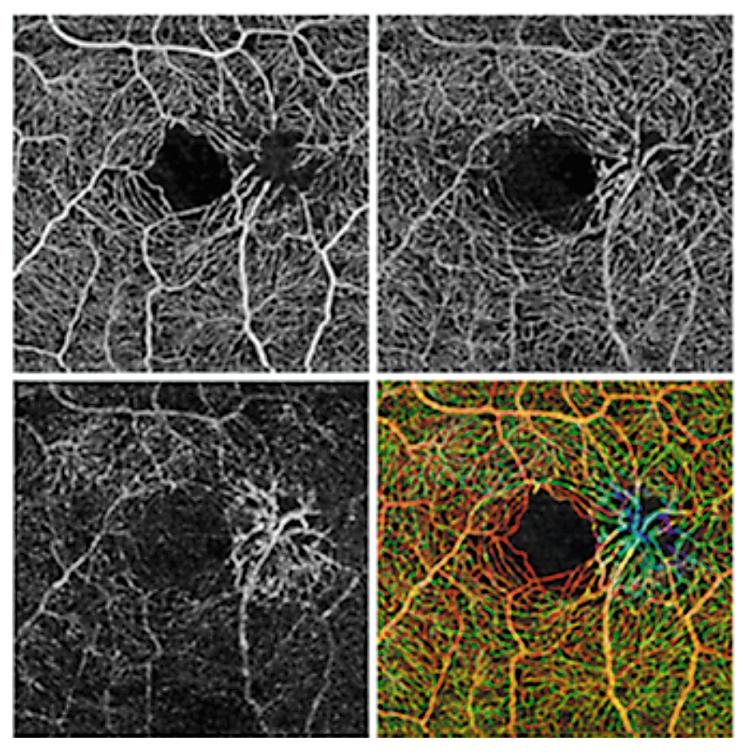 Cirrus Angioplex — новые возможности оптической когерентной томографии