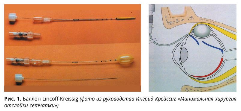 Минимальная экстрасклеральная хирургия отслойки сетчатки с использованием временной баллонной пломбы (клинические случаи)