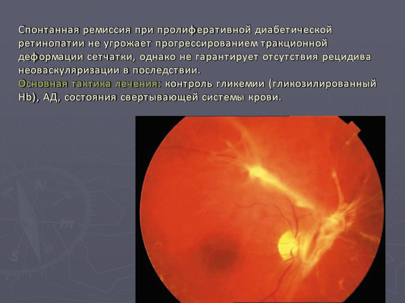 Системный подход к лечению больных с заболеваниями сетчатки на фоне тяжелой соматической патологии