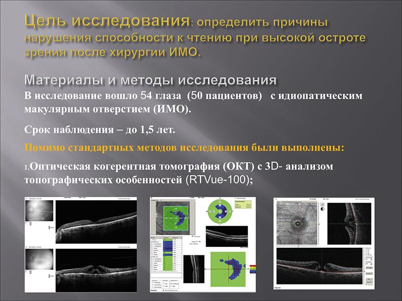 Нарушение способности к чтению при высокой остроте зрения после витреомакулярной хирургии