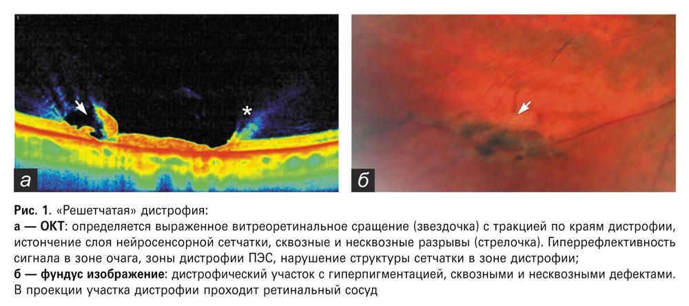 Новые перспективы применения оптической когерентной томографии в диагностике периферических витреоретинальных дистрофий сетчатки