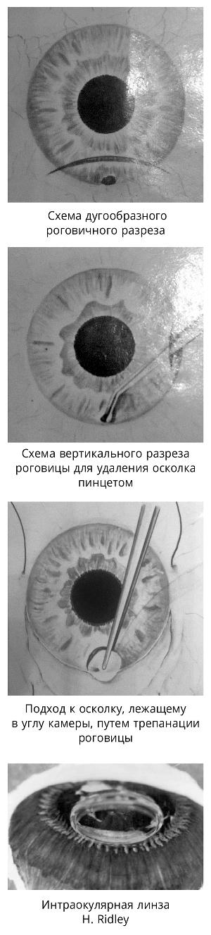 Skhemy