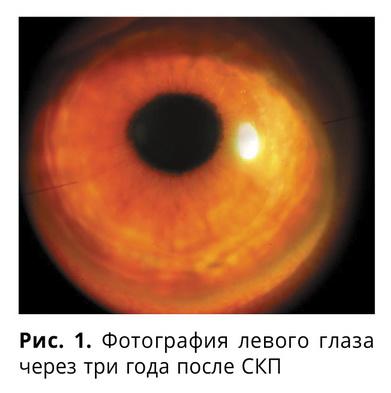 Различные варианты кератопластики на двух глазах одного пациента. Клинический случай