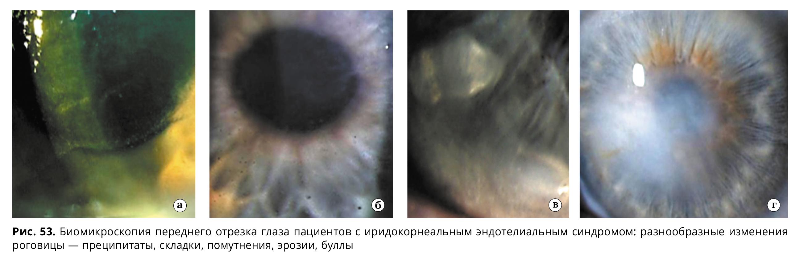 Увеопатии: особенности диагностики и течения