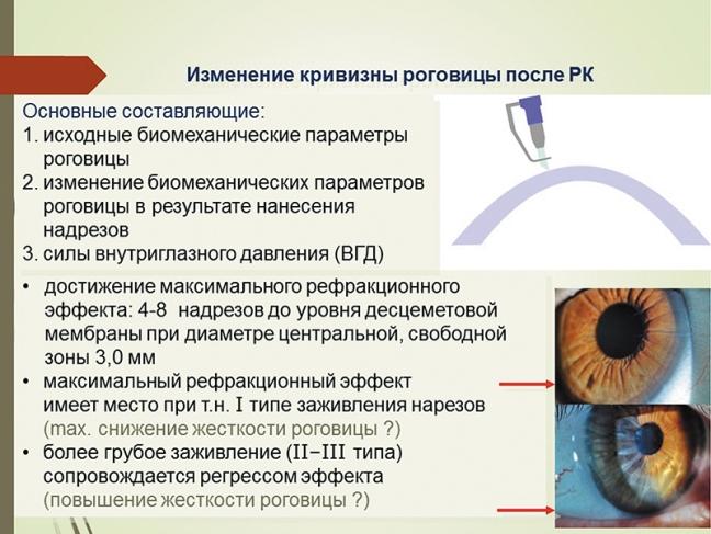 Внутриглазное давление и биомеханические свойства фиброзной оболочки глаза у пациентов, перенесших радиальную кератотомию